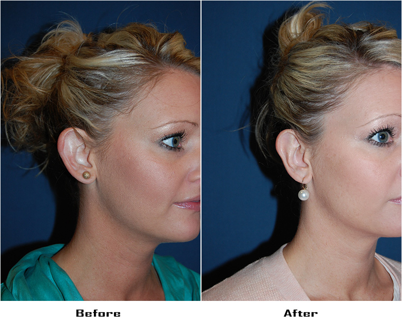 Patient 5672 Before And After