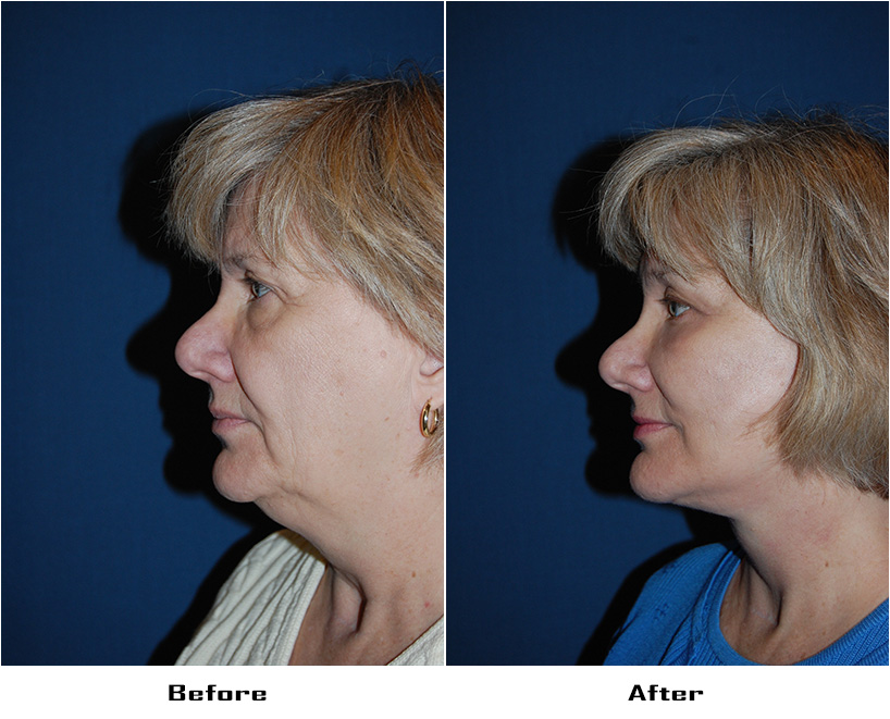 Patient 5897 Before And After