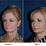 Patient 5941 Before And After