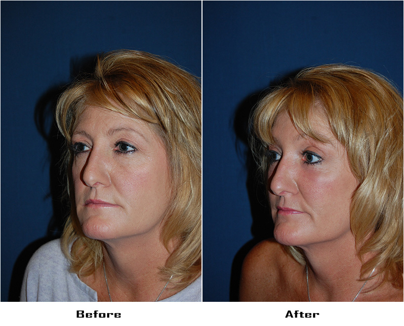 Patient 5991 Before And After