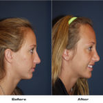 Case 2524-Rhinoplasty- 1 - Before&After