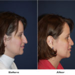 Case 3091- Rhinoplasty- 1-Before&After
