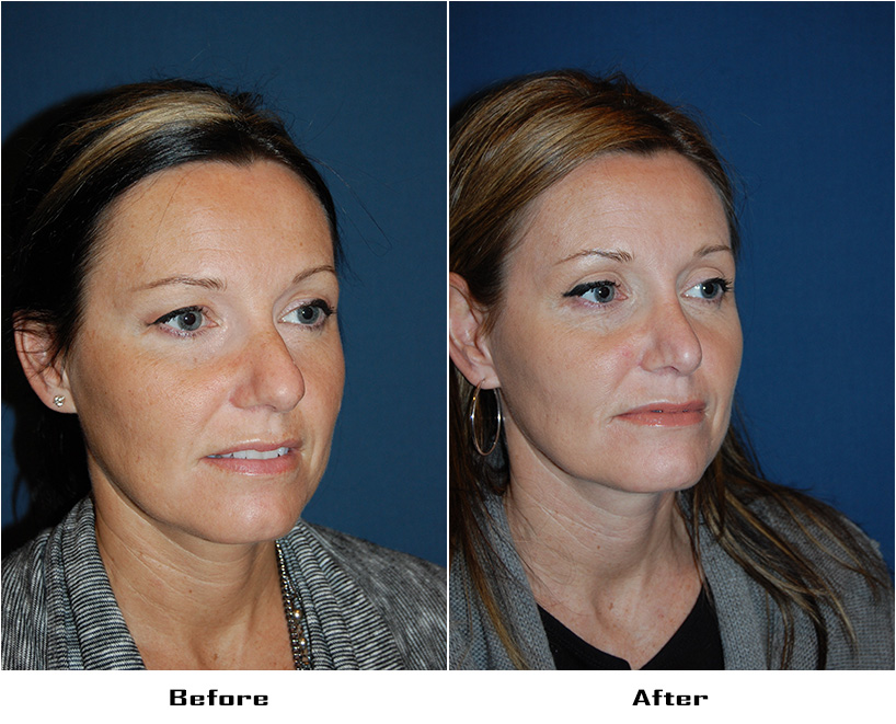 Case 3733- Rhinoplasty- 2- Before&After