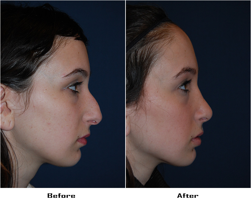 Case 3803- replaces case 72- Rhinoplasty- Before&After - 1
