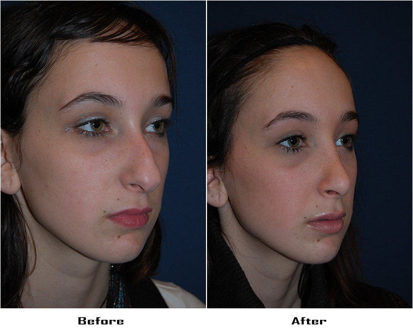 Case 3803- replaces case 72- Rhinoplasty- Before&After- 2