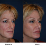 Case 4003-Rhinoplasty.Brow lift -lateral.Facial Implants-cheek- 1- Before&After
