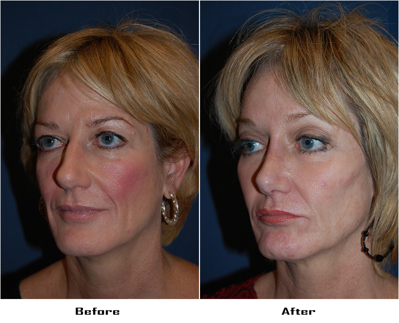 Case 4003-Rhinoplasty.Brow lift -lateral.Facial Implants-cheek- 2- Before&After
