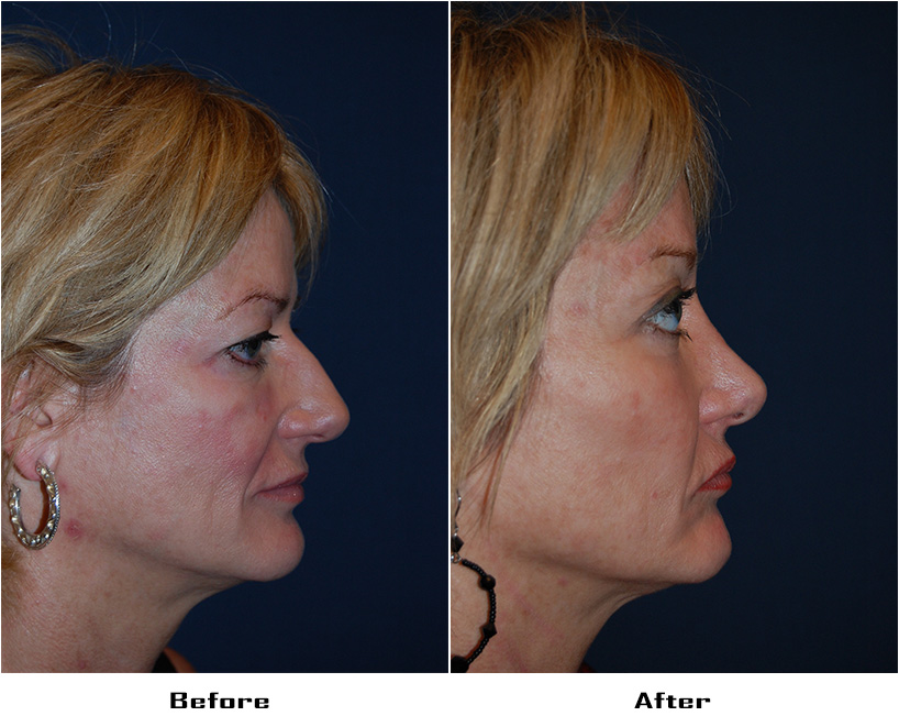 Case 4003-Rhinoplasty.Brow lift -lateral.Facial Implants-cheek- 3- Before&After