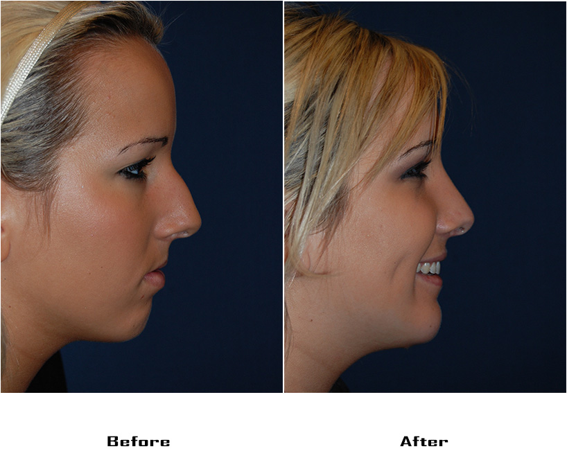 Case 4024- replace.case 71-Rhinoplasty and Facial Implants-Chin- 1- Before&After
