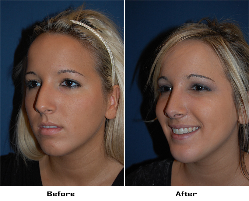 Case 4024- replace.case 71-Rhinoplasty and Facial Implants-Chin- 3- Before&After