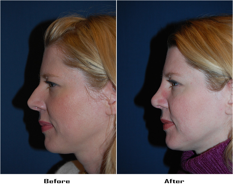 Case 4037-Rhinoplasty.Revision- 1- Before&After