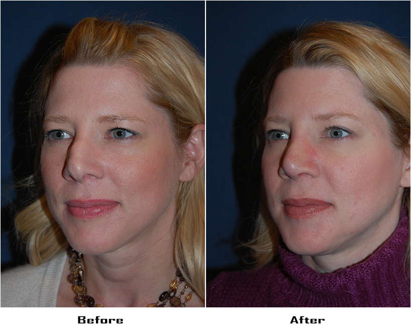 Case 4037-Rhinoplasty.Revision- 2- Before&After