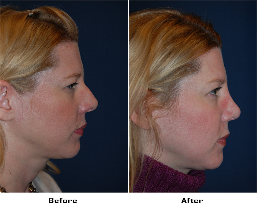 Case 4037-Rhinoplasty.Revision- 3- Before&After