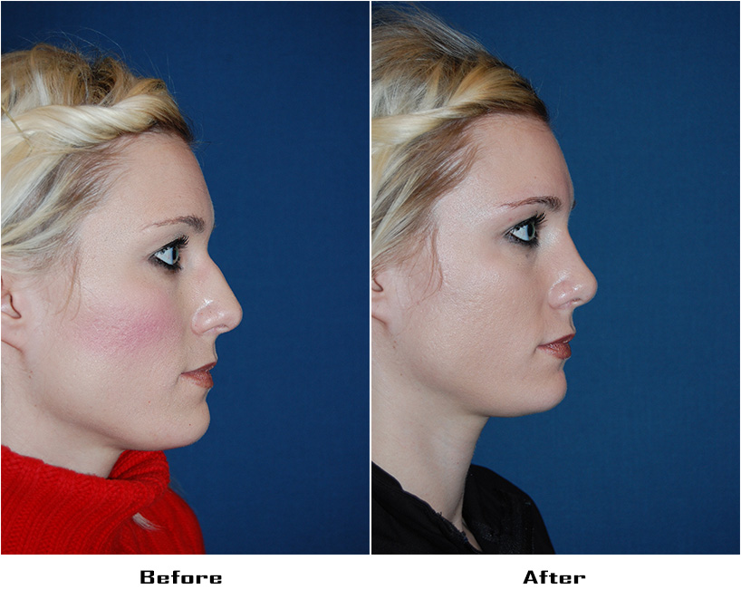 Case 4404-Rhinoplasty- 1- Before&After
