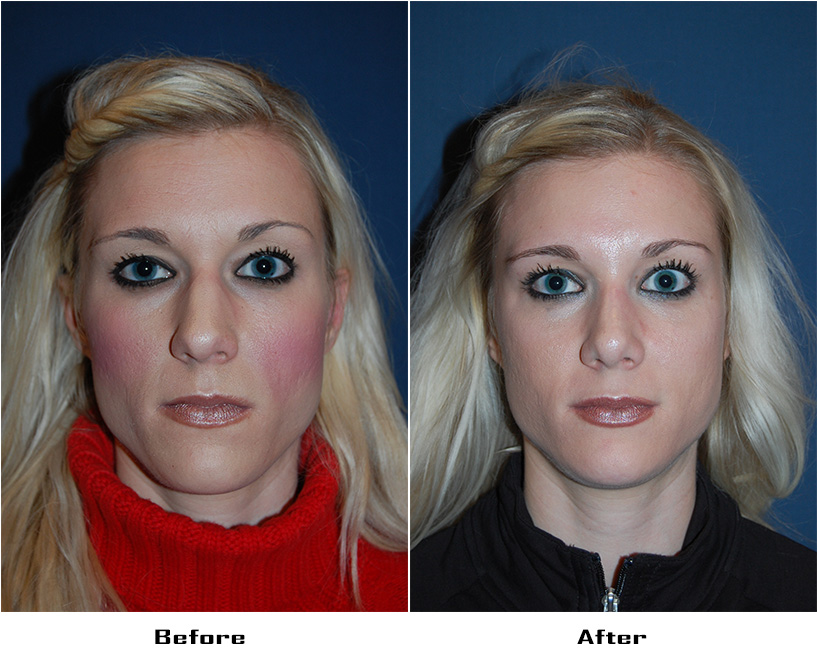 Case 4404-Rhinoplasty- 2- Before&After