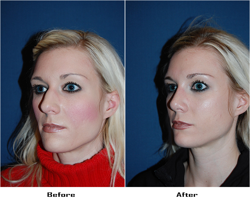 Case 4404-Rhinoplasty- 3- Before&After