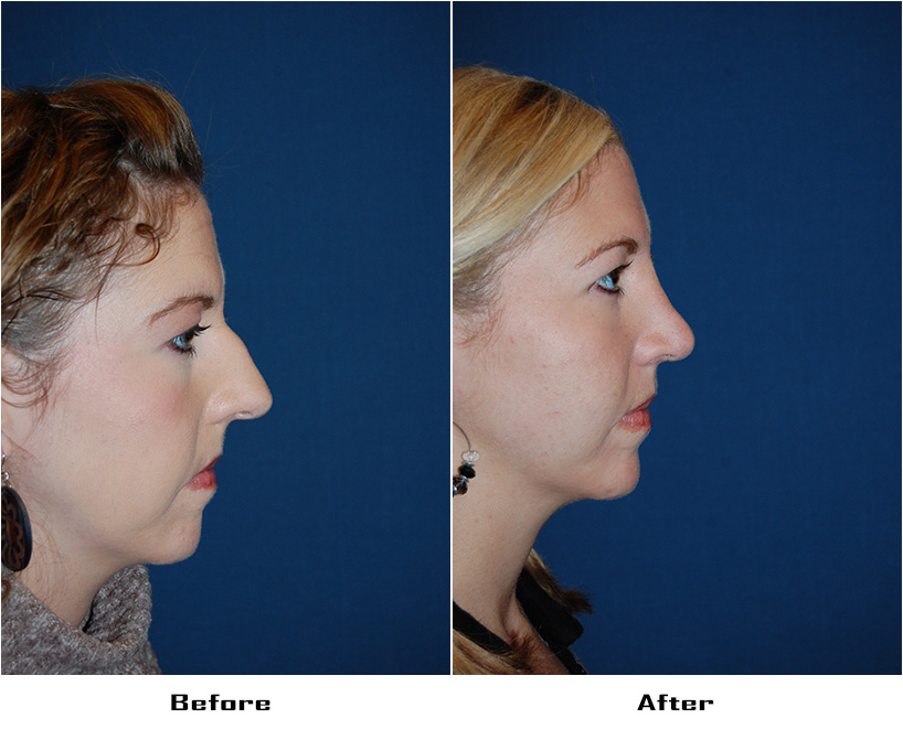 Case 4567-Rhinoplasty-1-Before&After