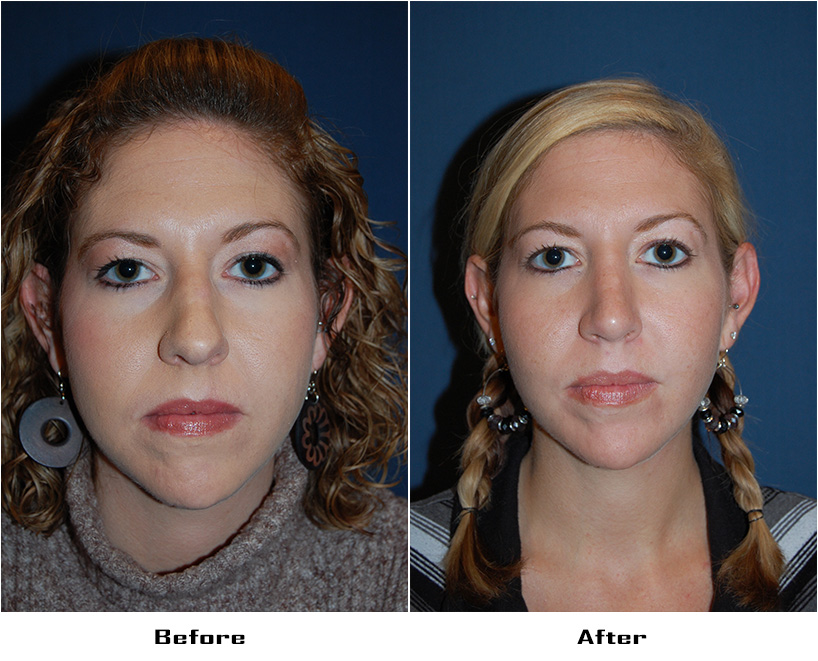 Case 4567-Rhinoplasty-2- Before&After