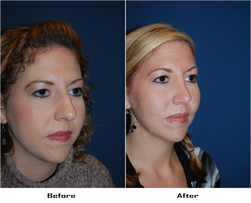 Case 4567-Rhinoplasty-3- Before&After