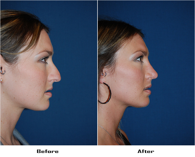 Case 4675-Rhinoplasty- 1- Before&After