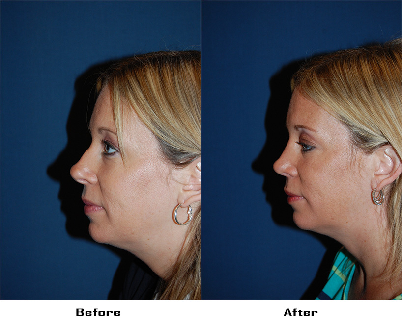 Case 4931-Rhinoplasty.Revision-1-Before&After
