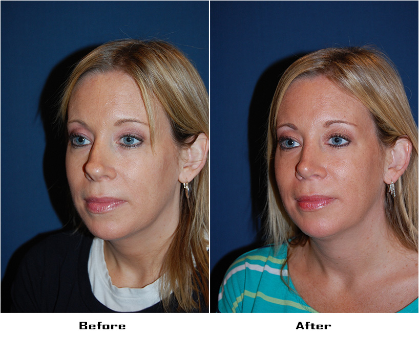 Case 4931-Rhinoplasty.Revision-3- Before&After