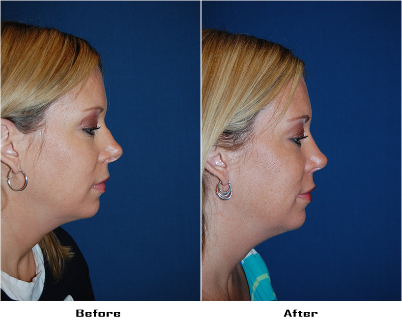 Case 4931-Rhinoplasty.Revision-5-Before&After