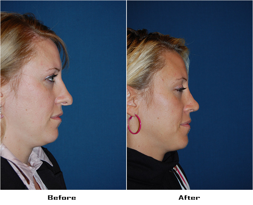 Case 5109- Revision Rhinoplasty- 1- Before&After