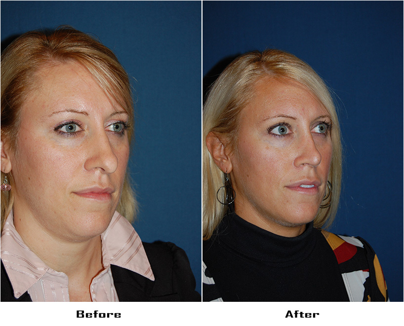 Case 5109- Revision Rhinoplasty-3- Before&After