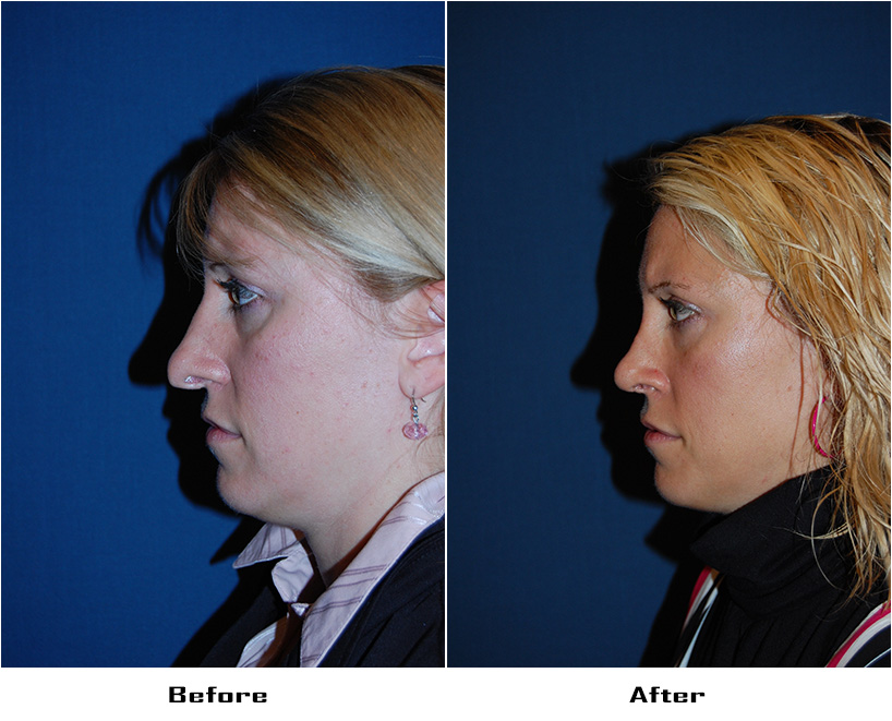Case 5109- Revision Rhinoplasty-4- Before&After