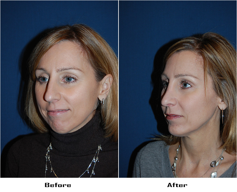 Case 5140-Rhinoplasty.Facial Implants-Chin- 2- Before&After