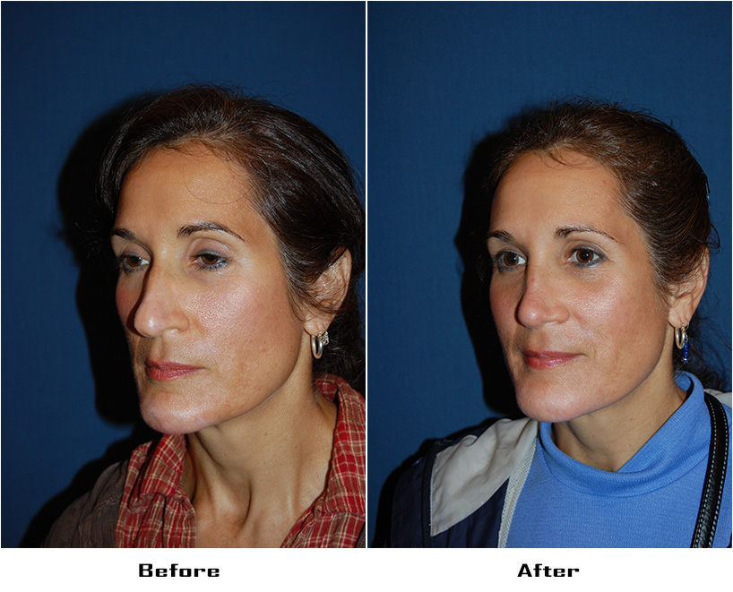 Case 5149-rhinoplasty- 1- Before&After