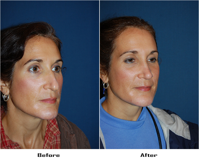 Case 5149-rhinoplasty- 2- Before&After