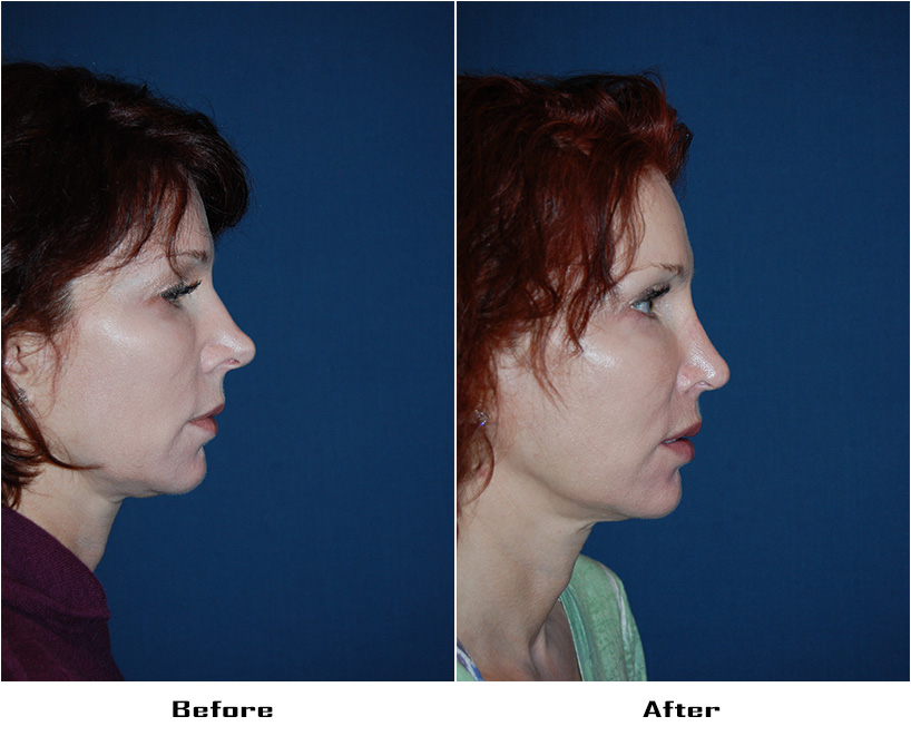 Case 5577- rhinoplasty and alar rim surgery-1 - Before&After