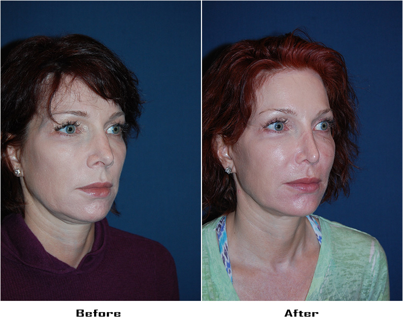 Case 5577- rhinoplasty and alar rim surgery- 2- Before&After