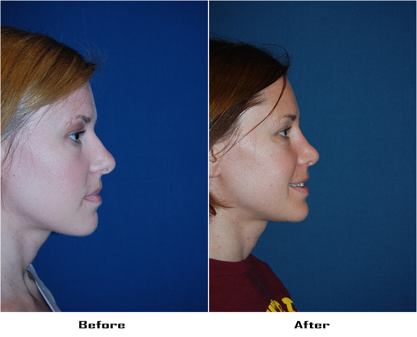 Case 5635- Rhinoplasty- 1- Before&After