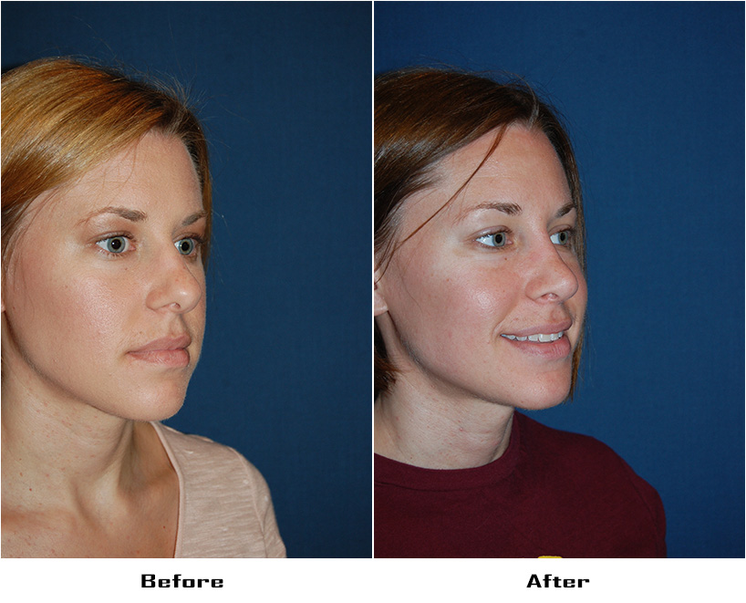 Case 5635- Rhinoplasty- 2- Before&After