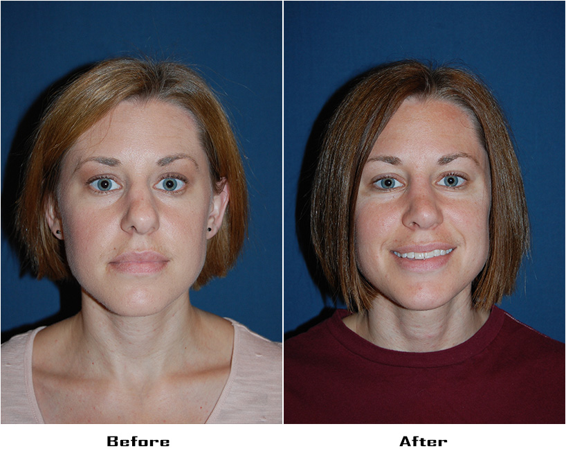 Case 5635- Rhinoplasty- 3- Before&After