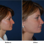 Case 690.Rhinoplasty.with alar rim surgery- 1- Before&After
