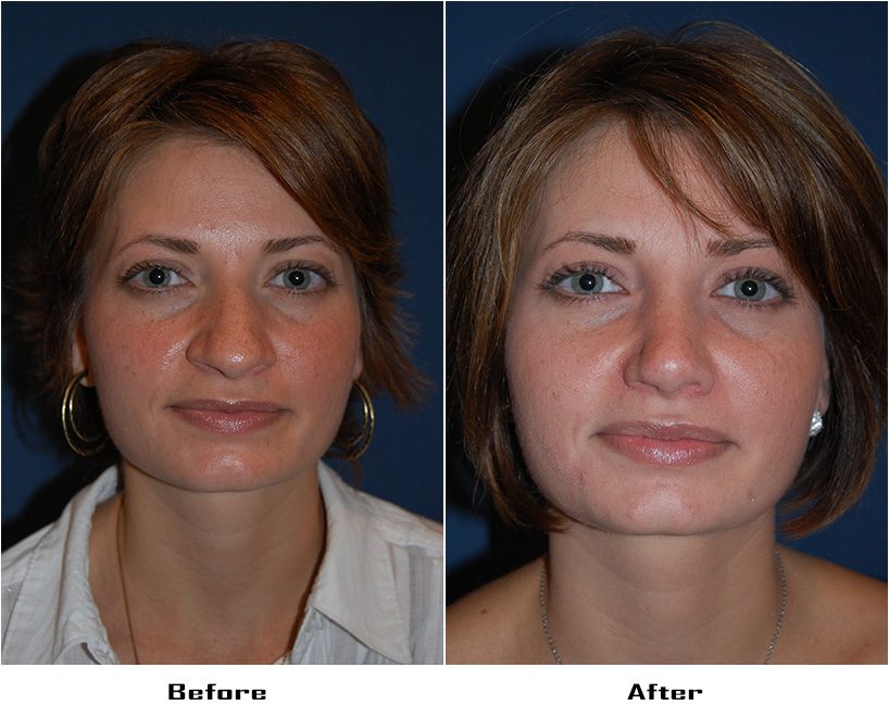 Case 690.Rhinoplasty.with alar rim surgery- 2- Before&After