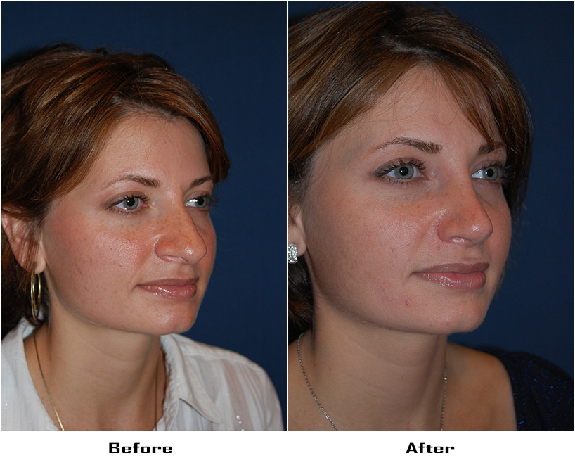 Case 690.Rhinoplasty.with alar rim surgery- 4- Before&After