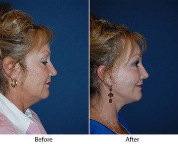 Patient 6113 beforeafter