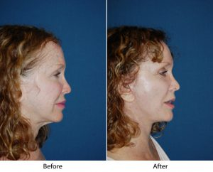 The Best Strategy To Use For Facelift Surgery