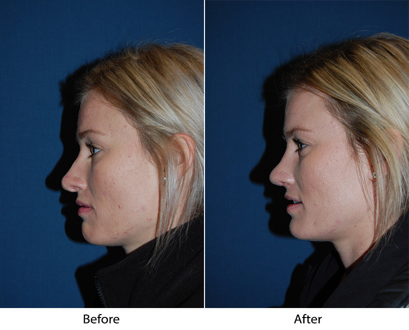 Best Charlotte rhinoplasty surgeon