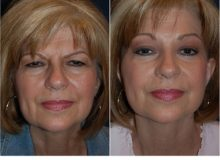 Patient 3825 - Before - After