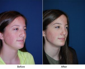 Rhinoplasty and Alar Rims