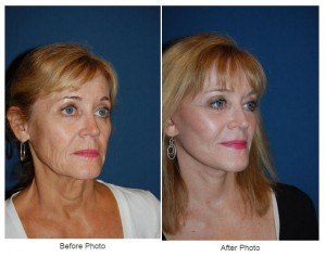 Endoscopic Brow Lift and makeover from Dr. Freeman- Charlotte facial plastic surgeon