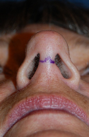 Rhinoplasty Incisions