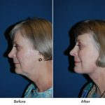 Facelift in Charlotte for younger women