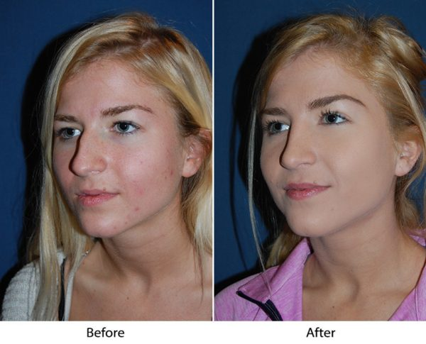 Nose Surgery Onlyfaces Charlotte NC